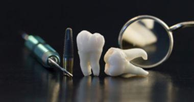 Biermann Zahntechnik GmbH - Implantatprothetik, CAD CAM Fräsen, 3D Druck. in Oberammergau